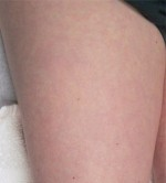 Sclerotherapy and Laser Vein Treatment