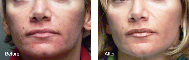 Phtoto-rejuvenation of the face with IPL - before and after treatment photos